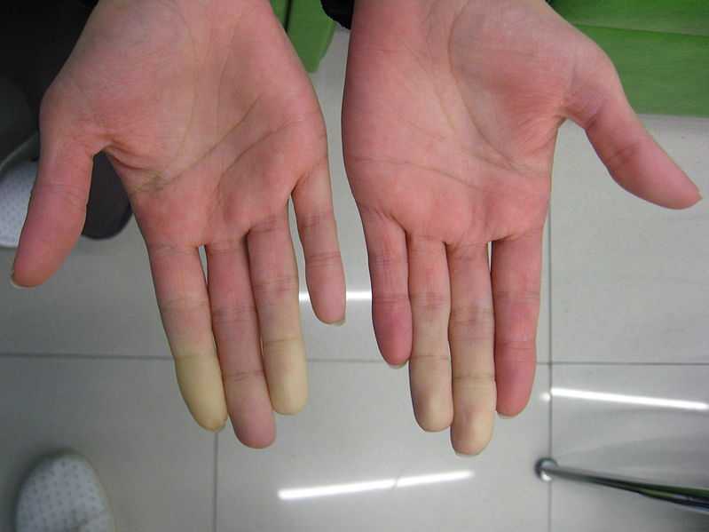 Fingers with low blood circulation
