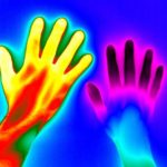 Thermal image of raynaud disease