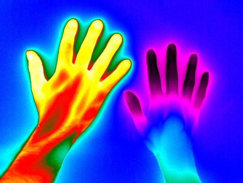 Thermal image of raynaud disease